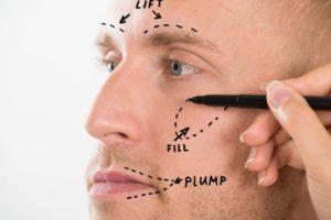 Chirurgie Esthétique Faciale Chez L'homme